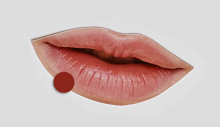 What causes dark spots on lips?